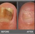 IPL toe fungus